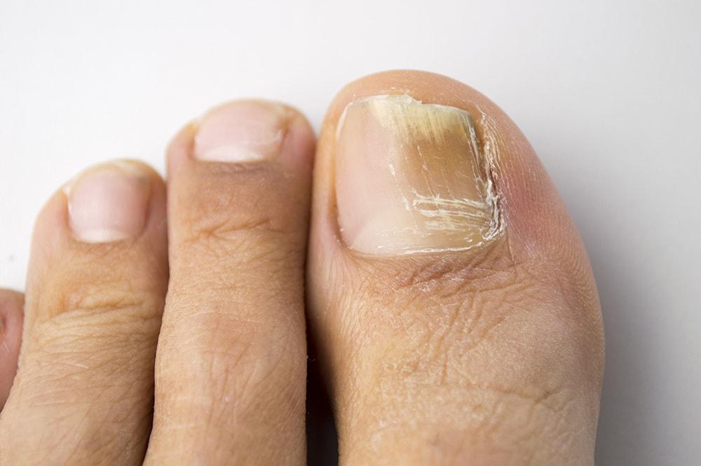 Lésions des ongles et de la peau